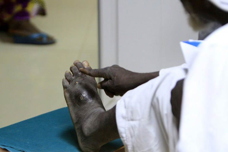 A patient's infected foot. (Pic: AFP)