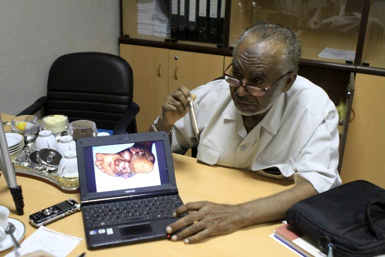 Elsheikh Mahgoub, supervisor of Sudan's Mycetoma Research Centre, shows a picture of an infected foot on his computer. (Pic: AFP)